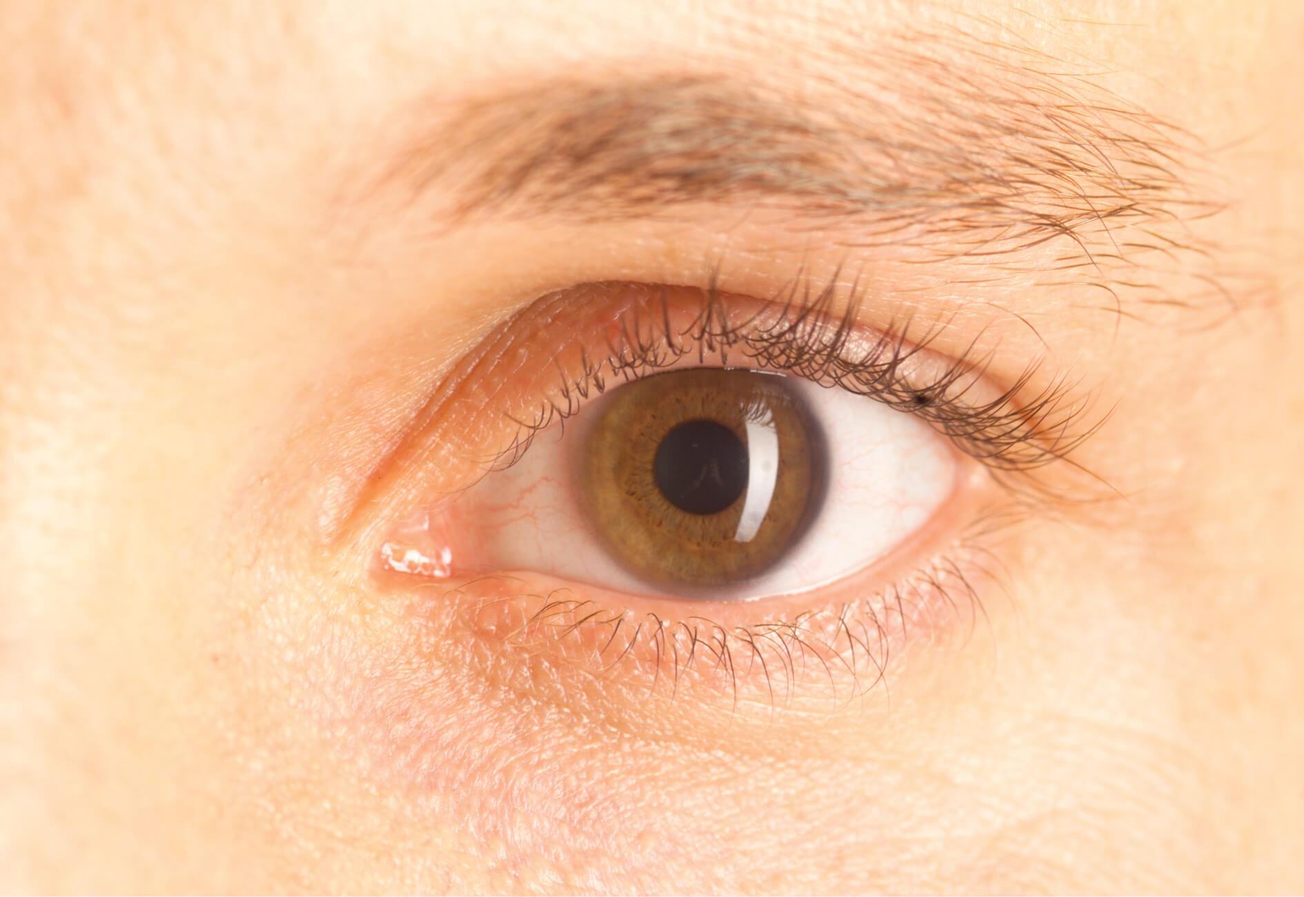 Naturheilkunde für die Augen?